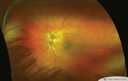 retinal exam westbrook