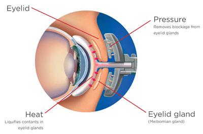 Dry Eye Treatment Diagram