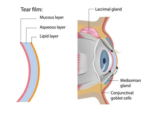 Dry Eye - Tear Film Diagram