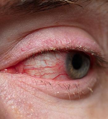 Blepharitis (bacterial infection of the eyelid edges)