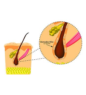 Demodex (skin mites infesting the eyelashes)