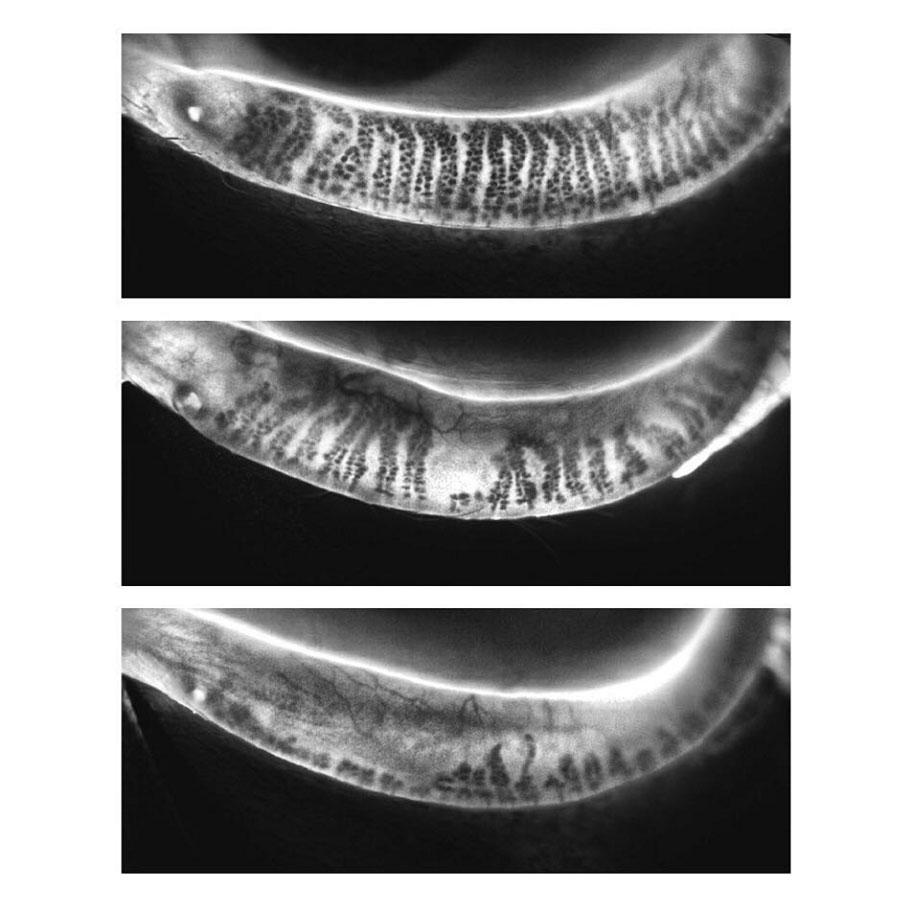 Image of the eyelid meibomian glands